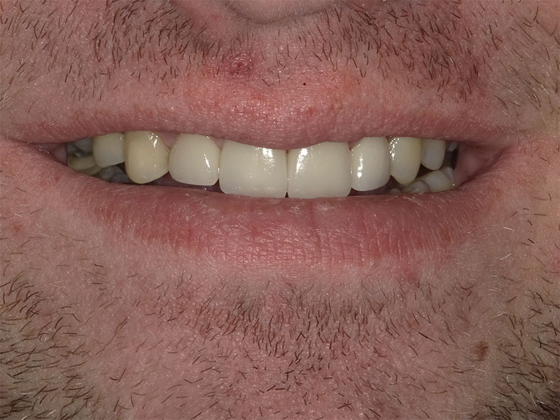 patient after 4 upper crowns