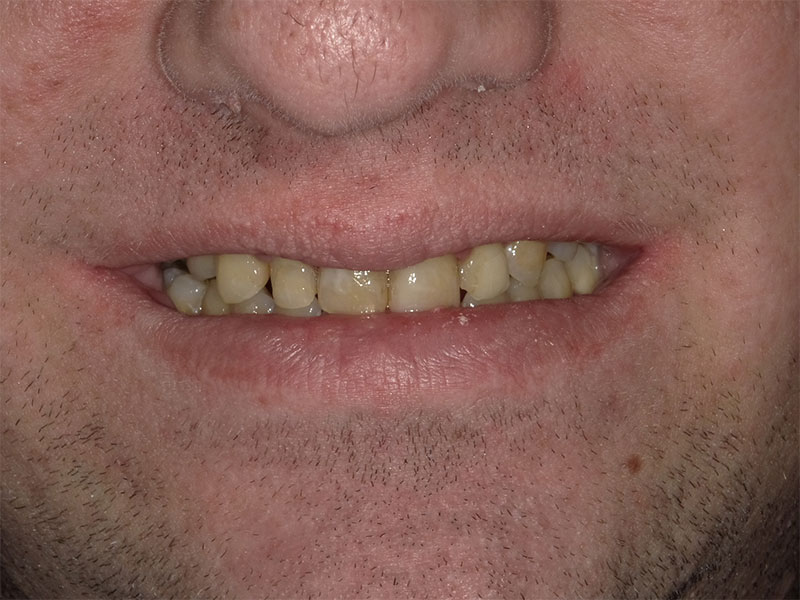 patient before 4 upper crowns