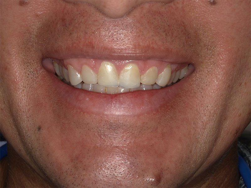 patient after 6 upper veneers