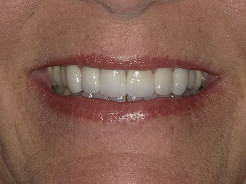patient after 7 upper crowns