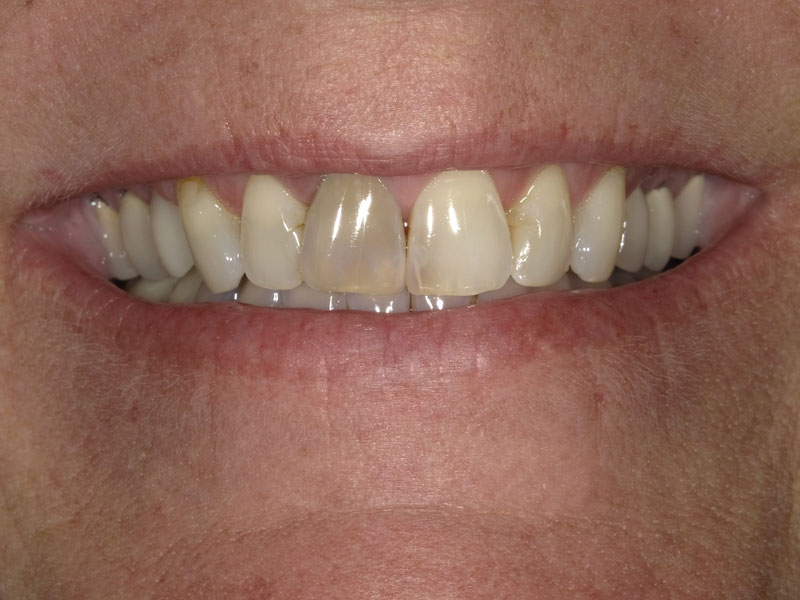 patient before 7 upper crowns