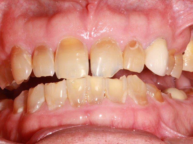 patient before 6 upper veneers